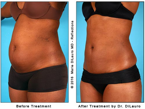 before and after liposuction photos-front view