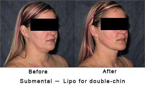 submental or double chin lipo to woman