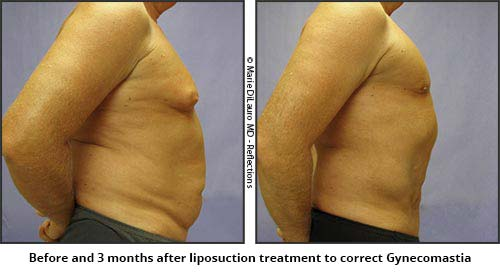 Liposculpture for gynecomastia or enlarged breast in man