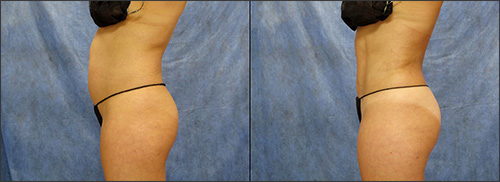 Liposuction-fat removal stomach, waist before & after