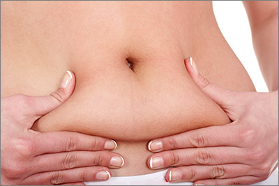 Liposuction Belly Fat