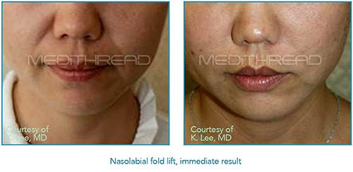 Nasolabial Fold