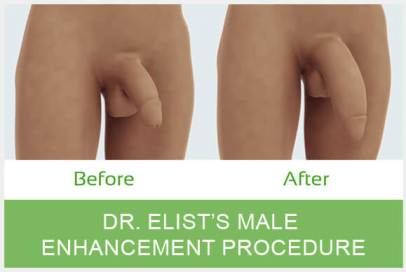 Dr Elist Penis Enlargement Surgery Before After Photo