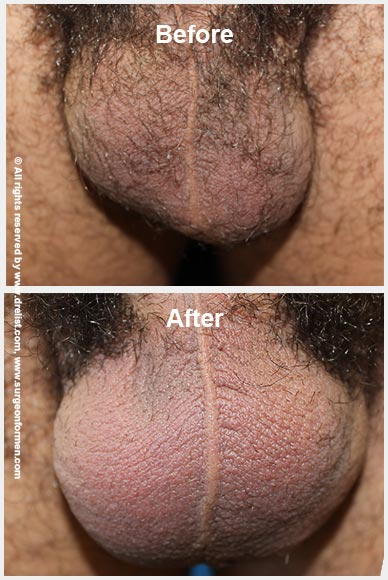 Testicle Enlargement Before After Photo