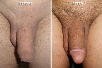 Circumcision Healing, Circumcision benefits, Circumcision Before After Photo