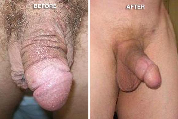 Penile Reconstruction Surgery