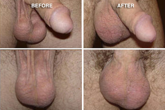 testicular enlargement