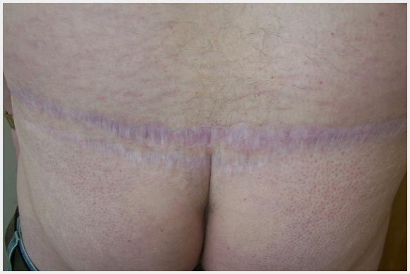 Dermal Graft Harvest Scar