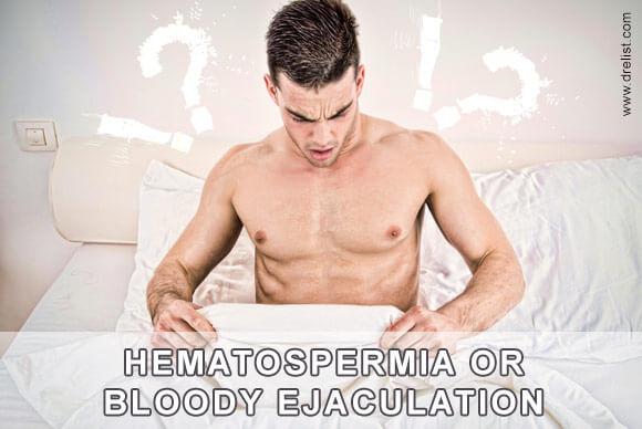 Hematospermia Image