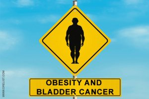 Obesity and Bladder Cancer image