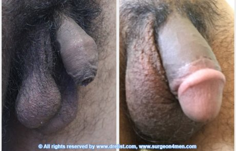 before-after-penis-6-3