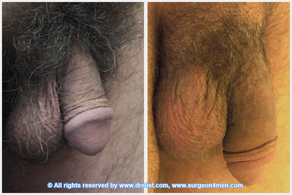 Penis Enlargement Surgery Before After 18