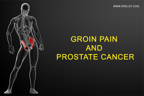 groin pain and prostate cancer - dr. elist reviews mens wellness, Skeleton