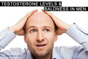 Testosterone Levels and Baldness In Men image