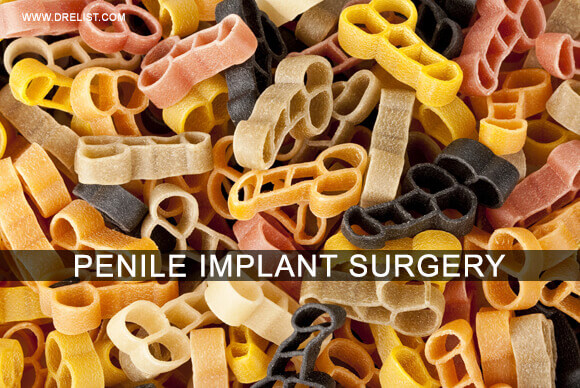 Penile Implant Surgery – How Is It Performed? image