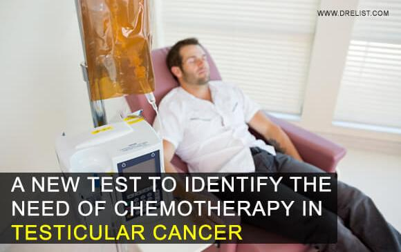 A New Test To Identify The Need Of Chemotherapy In Testicular Cancer Image
