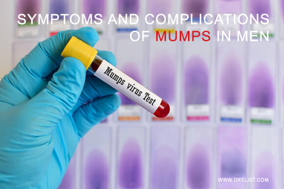 Symptoms And Complications Of Mumps In Men Image