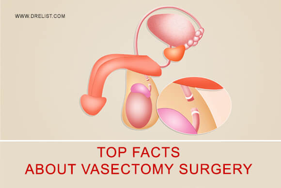 Top Facts About Vasectomy Surgery Image
