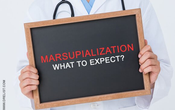 Marsupialization - What To Expect? Image