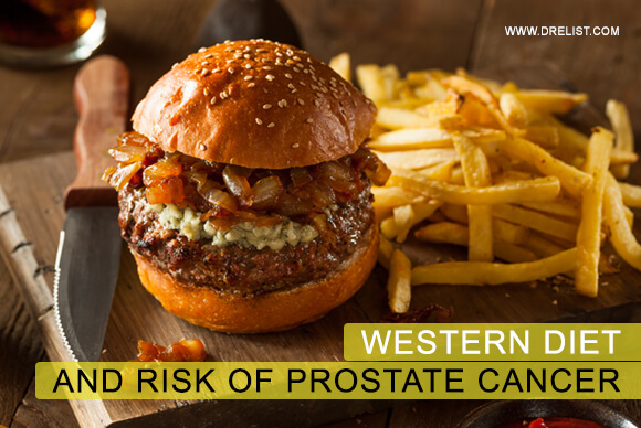 Western Diet And Risk Of Prostate Cancer Image