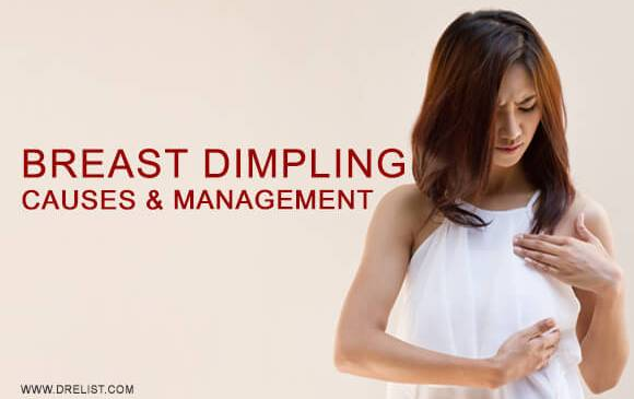 Breast Dimpling - Causes And Management Image