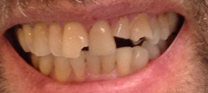 Dental Crowns Before Patient1