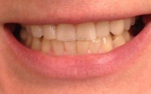 Teeth Bleaching and Whitening Before Patient1