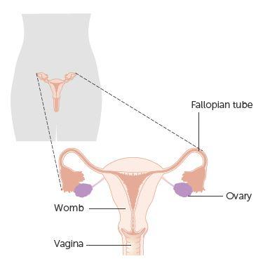 Ausencia de vagina