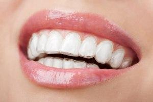 Trattamenti-ortodonzia invisalign 2