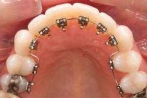 ortodonzia-linguale_O2