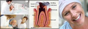 Studies Show Root Canal and Cancer link