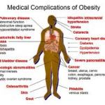 Obesity is a complex multifactorial chronic disease