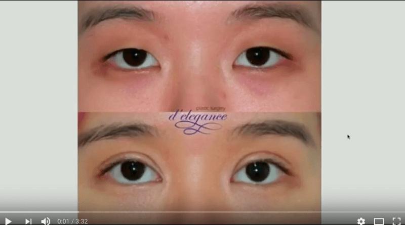 Operasi plastik kelopak mata