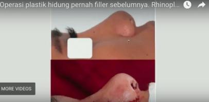 operasi hidung bekas filler