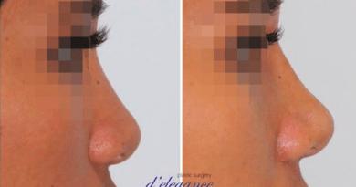 operasi plastik hidung jakarta