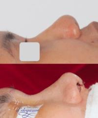operasi plastik memancungkan hidung