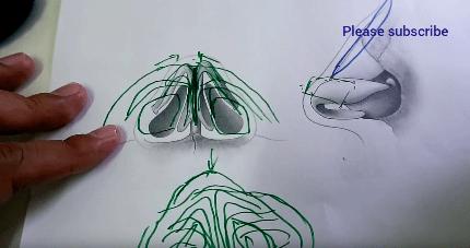 cara operasi plastik hidung