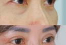 Mengapa sayatan kelopak mata pada yang usia lebih tua akan lebih panjang?