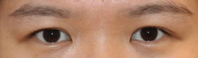 operasi plastik, kelopak mata