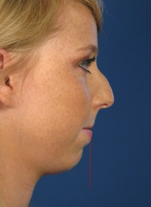 Chin Augmentation with Implants San Diego CA