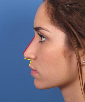 Finesse Female Ethnic Rhinoplasty