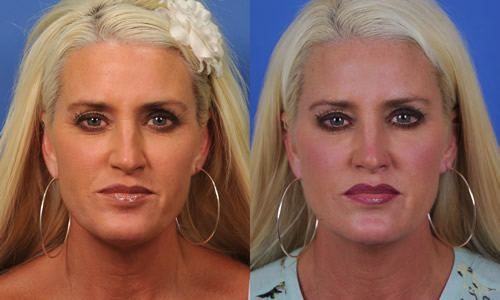 Sculptra Plla Face Injection San Diego