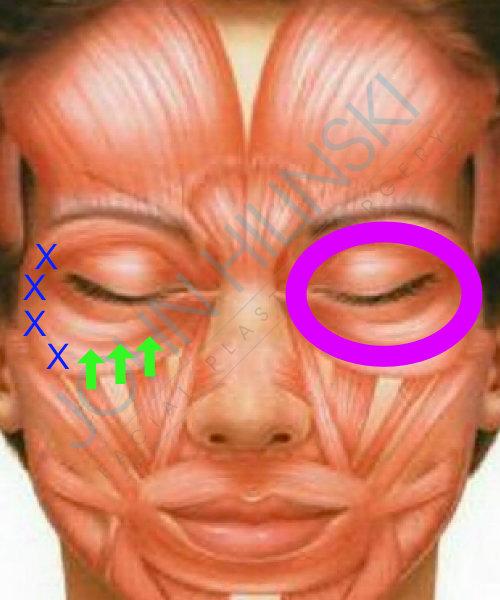 Botox and Under Eye Wrinkles