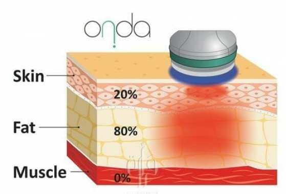 4-  جلسات اذابة الدهون بواسطة طاقة الترددات الراديوية