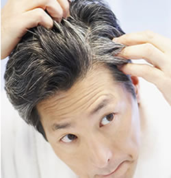 Top Homeopathic Remedies For Grey Hair Or White Hair Treatment