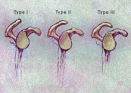 Acromion Types