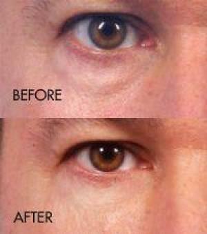 filler under eye