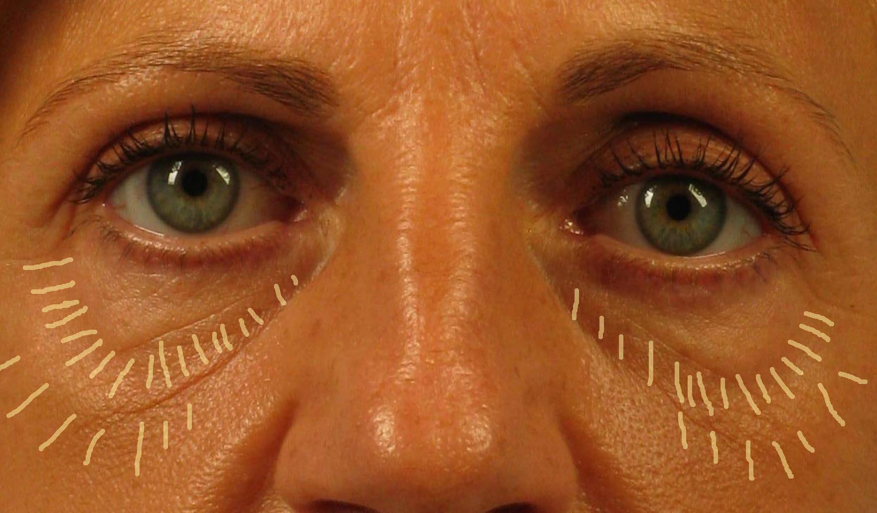 sunken eyes treatment - HD1760×1030