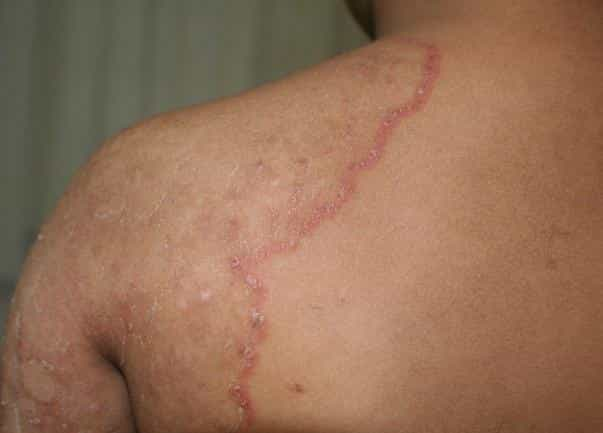 Tinea Cruris Symptoms, Causes And Treatment