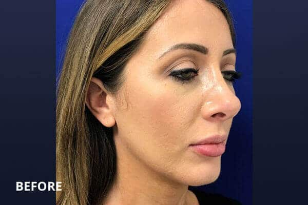 restylane cheek filler before and after post